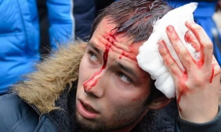 FENOMEN: Rus pao s osmog sprata i progovorio srpski!