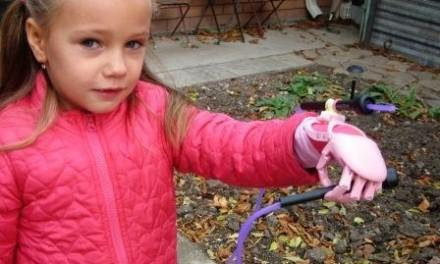 Medicinskim dostignućima u Rusiji djeca sa invaliditetom dobila zanimljiva pomogala