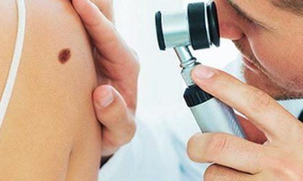 Naša klinika – Pregled mladeža dermatoskopijom