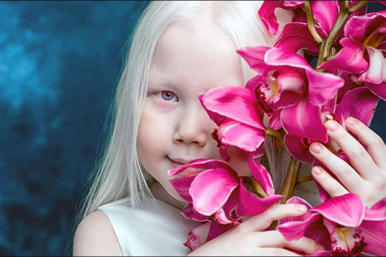 Albino djevojčica nova internet senzacija